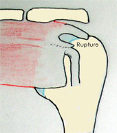 Information sur l'intervention de réparation arthroscopique de la rupture de la coiffe des rotateurs - 8.6 Ko